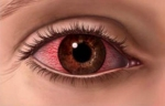 dry itchy red eye